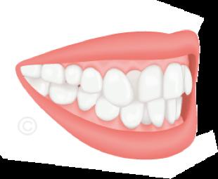 Cabinet orthodontiste 92 - Cabinet 21 Libération