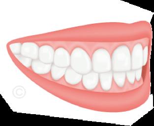 Malocclusions dentaires - Cabinet 21 Libération