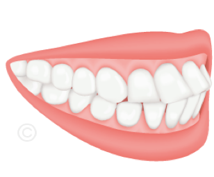 Orthodontiste Rueil - Cabinet 21 Libération