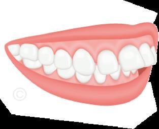 Orthodontiste Nanterre